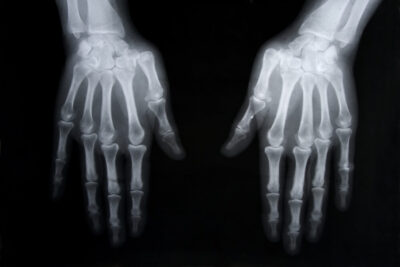 rentgen dłoni